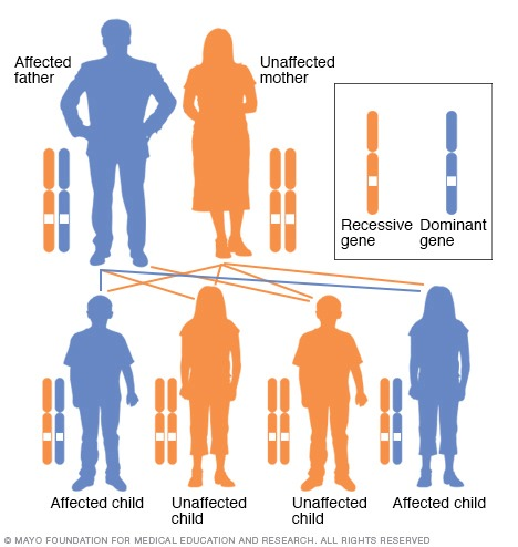 Illustration showing autosomal dominant inheritance pattern